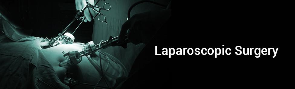 Laparoscopic Surgery Digestive Surgery Clinic