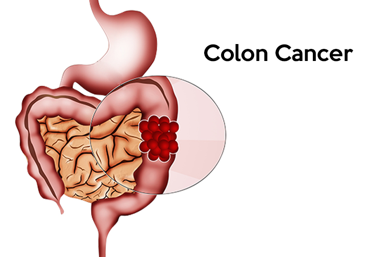 Laparoscopic surgery is advantageous in colon cancer patients ccuart Choice Image