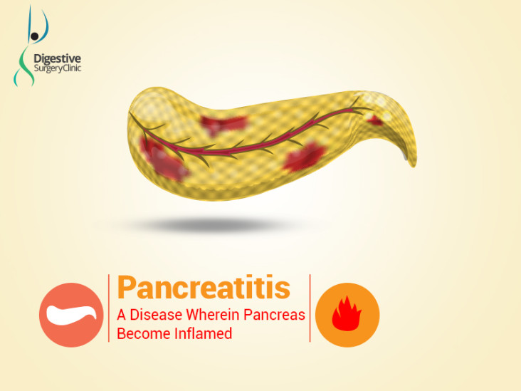 chronic pancreatitis