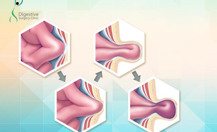hernia surgery India