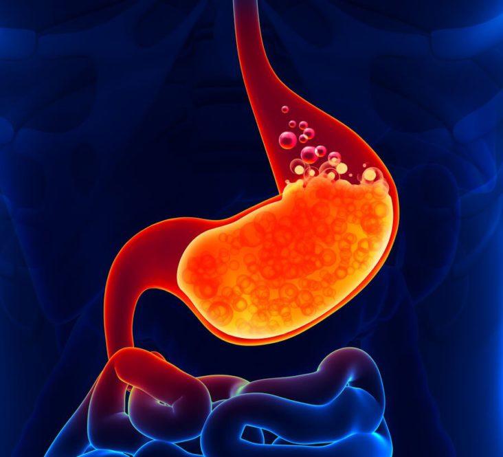 Gastric Reflux (GERD)